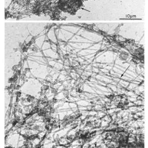"""ורד אביב, צנרת של קצות עצבים, 1988/2010, תצלום במיקרוסקופ אלקטרונים 33X54.5 ס""""מ"""